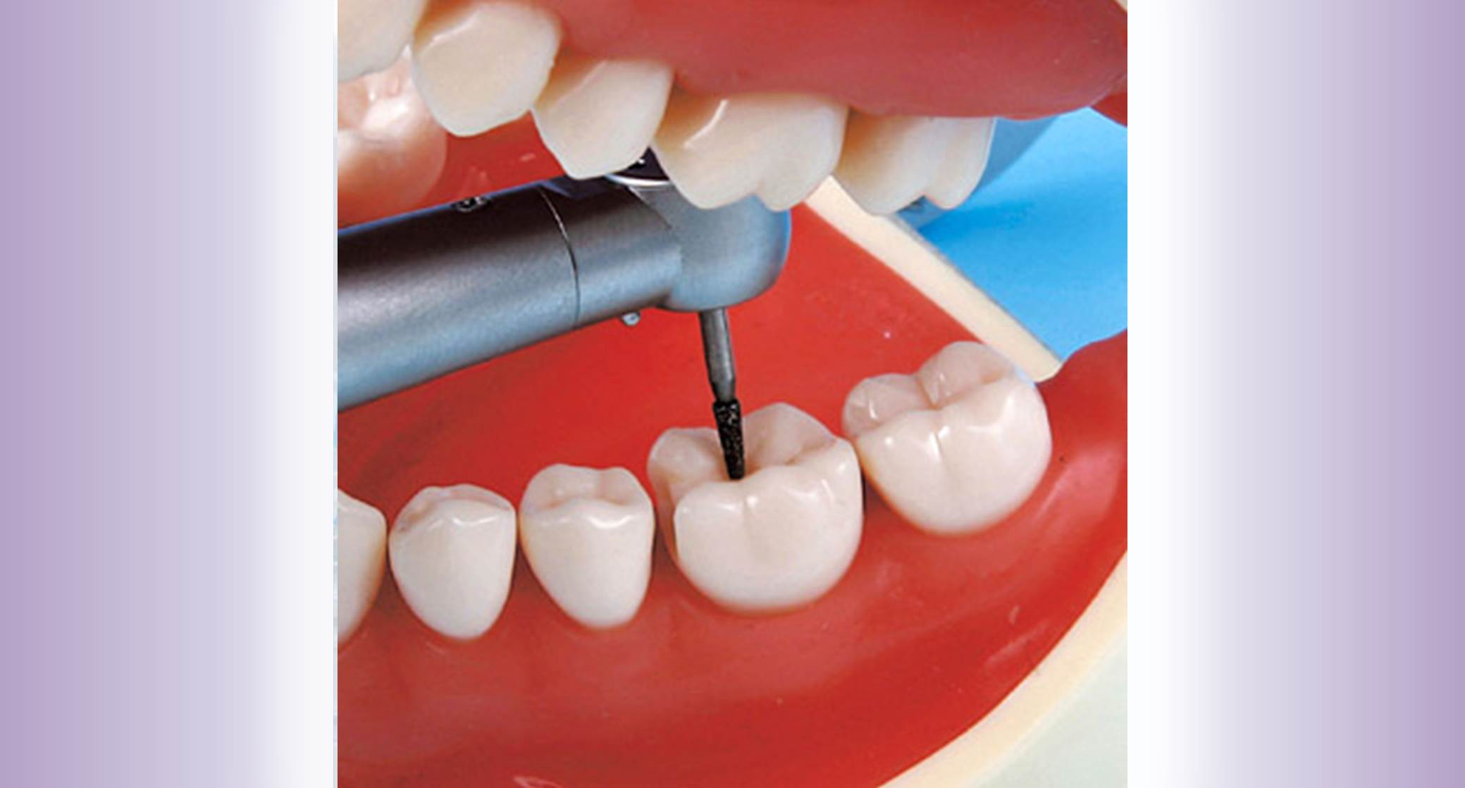Dental Study Model widget