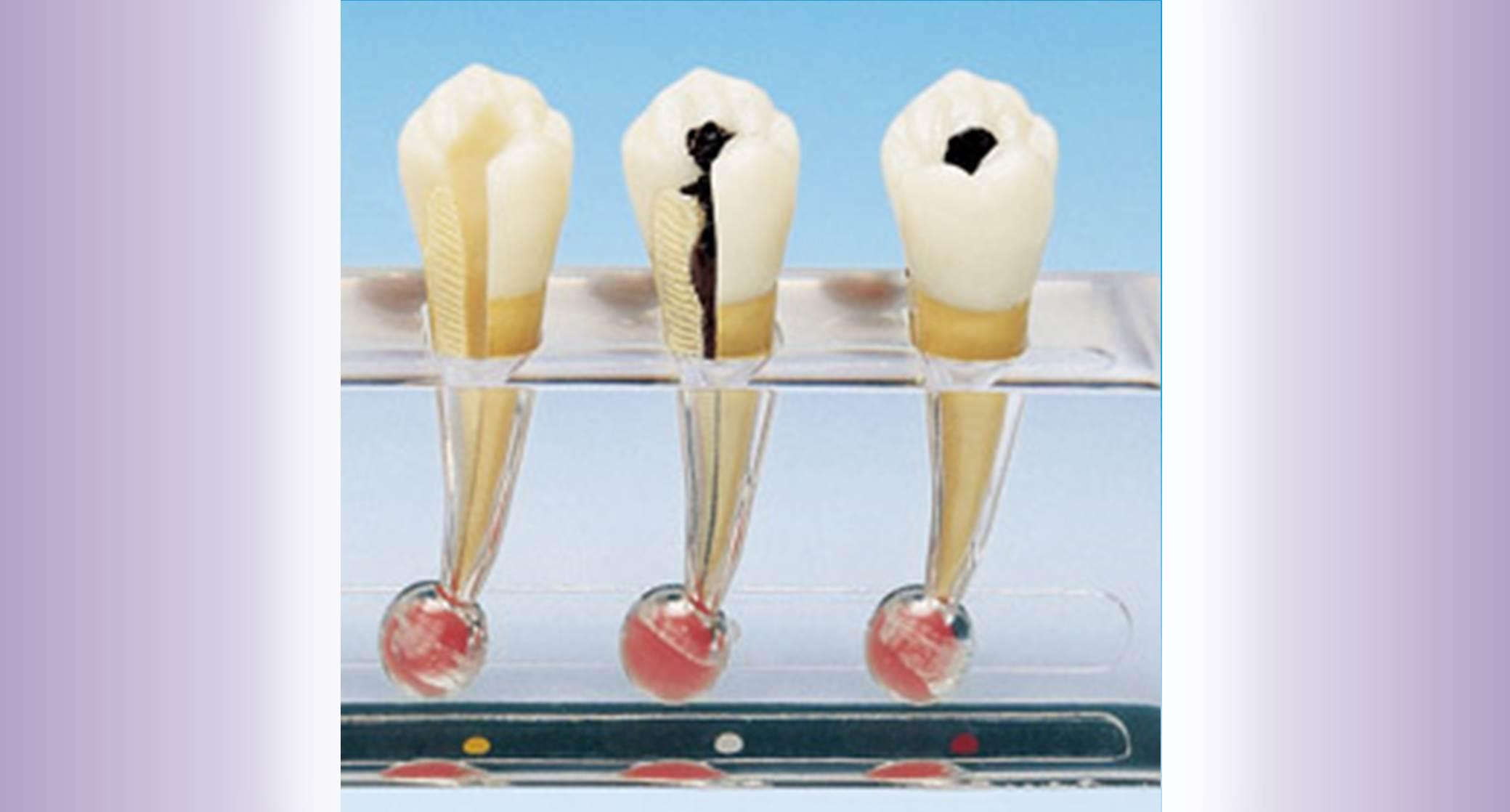 Endodontics widget