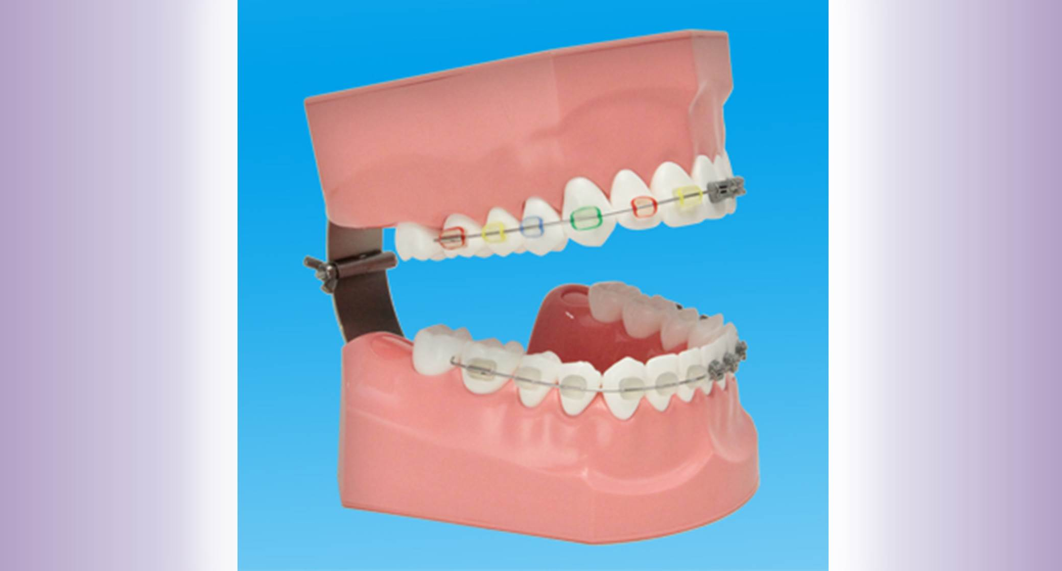 Orthodontics widget