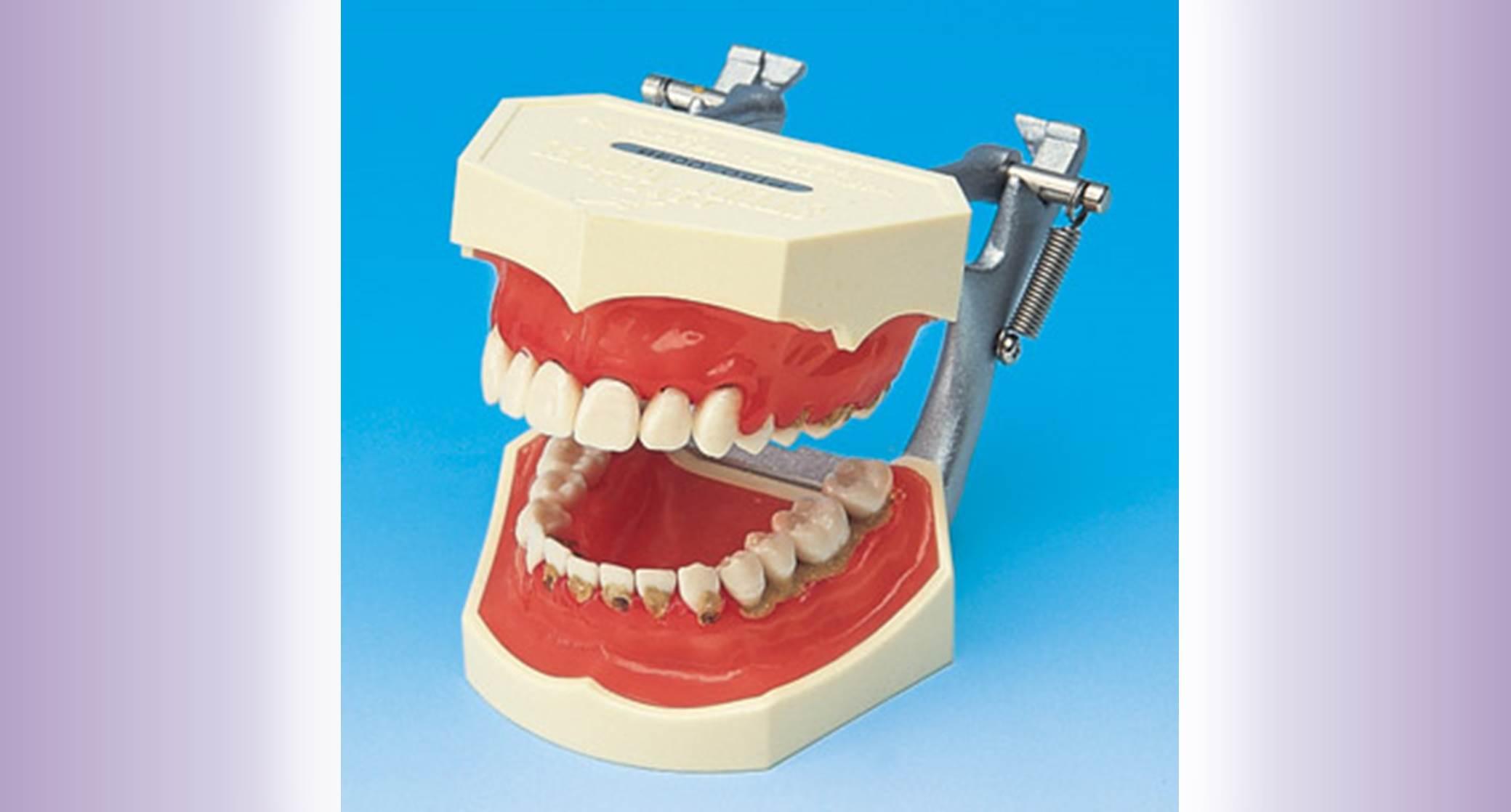 Periodontics widget