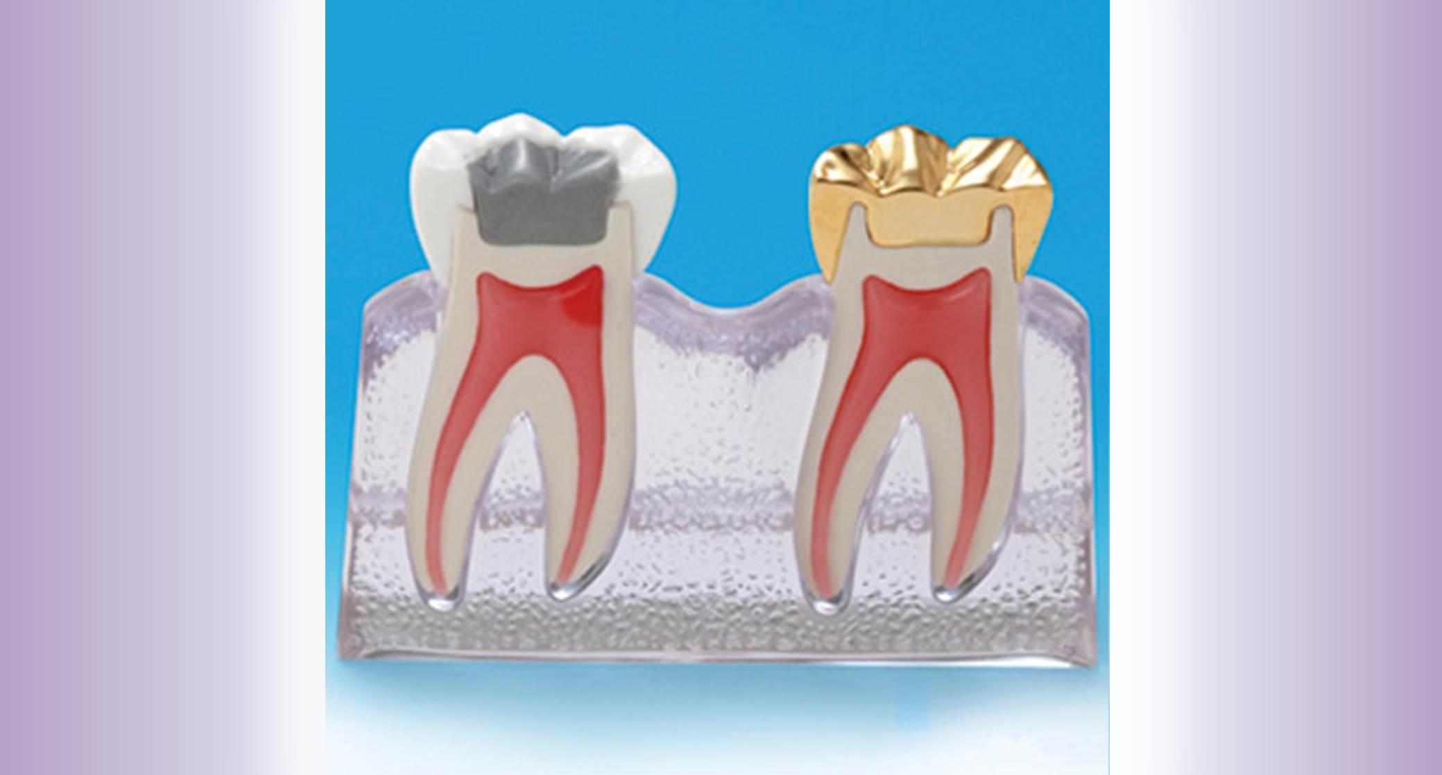 Prosthodontics widget
