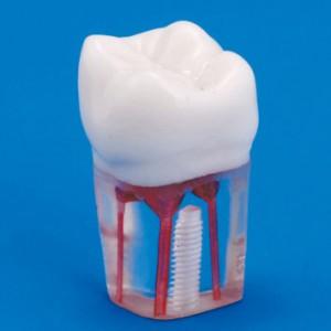 Conservative Dentistry Phantom Head Dental