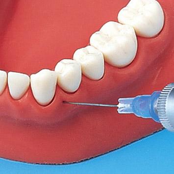 Как сделать заморозку зуба